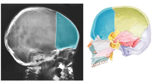 Radiology Comparison